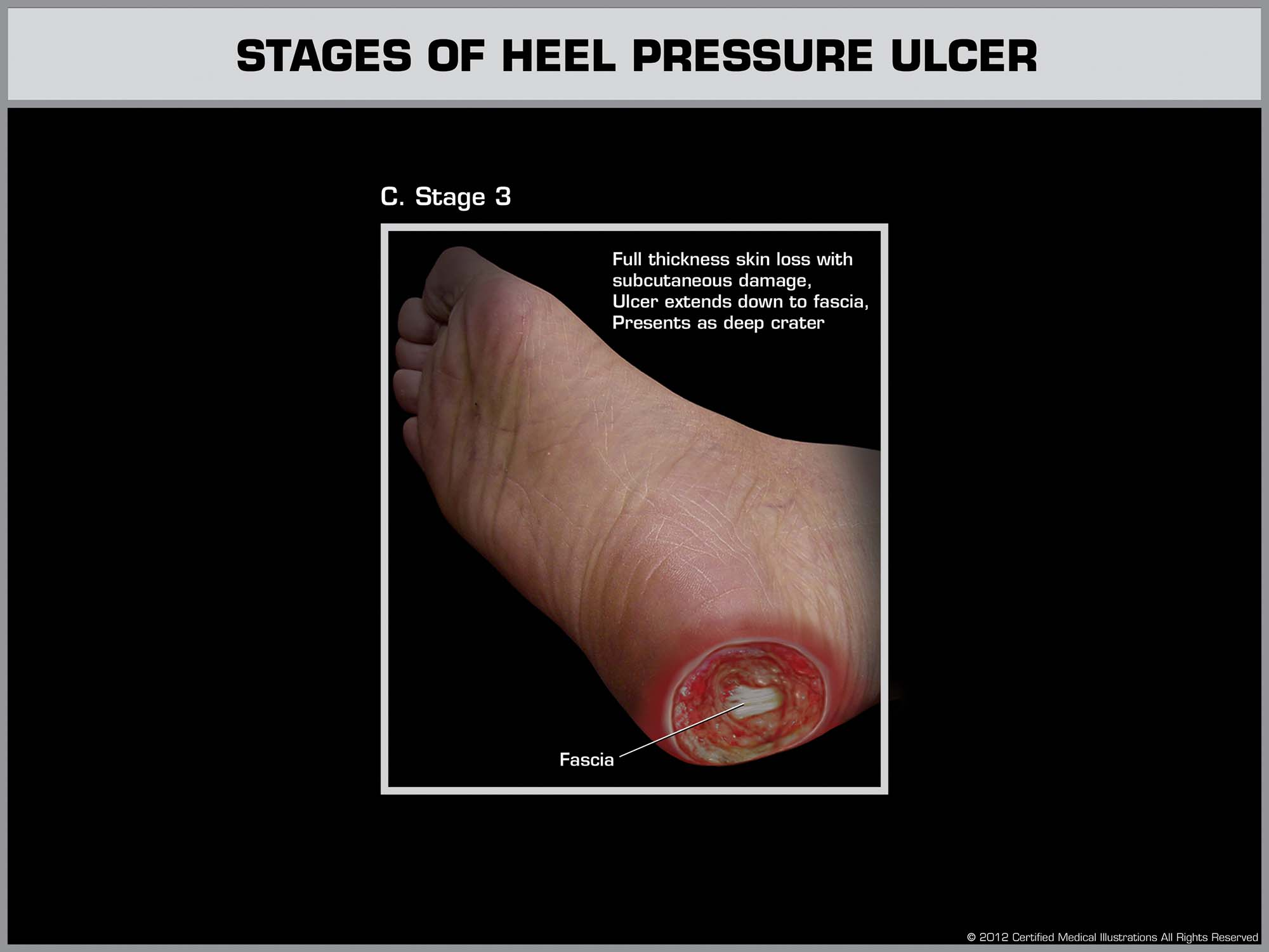 Development of a Heal Ulcer - Stage 3 - Law Office of Andrew A. Ballerini