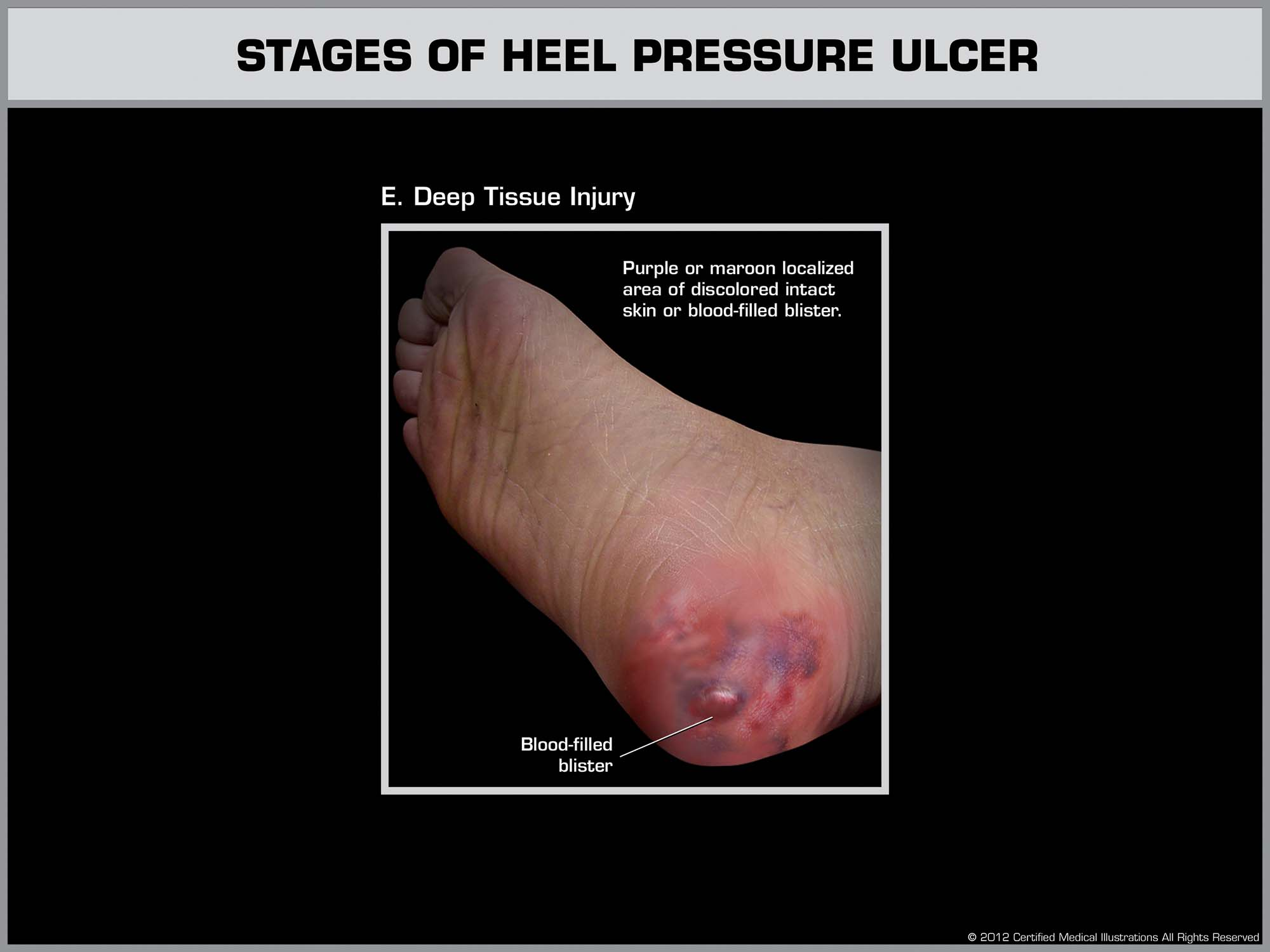 Development of a Heal Ulcer - Stage 5 - Law Office of Andrew A. Ballerini